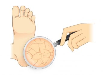 The Answer to Foot Complications in Diabetes